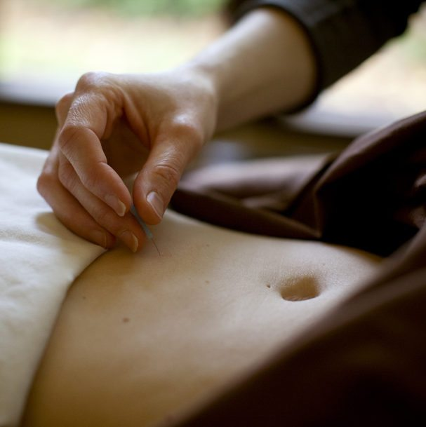 Sharon Gray and belly acupuncture